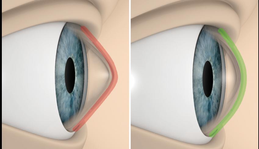 01-esquema-cornea-anillos