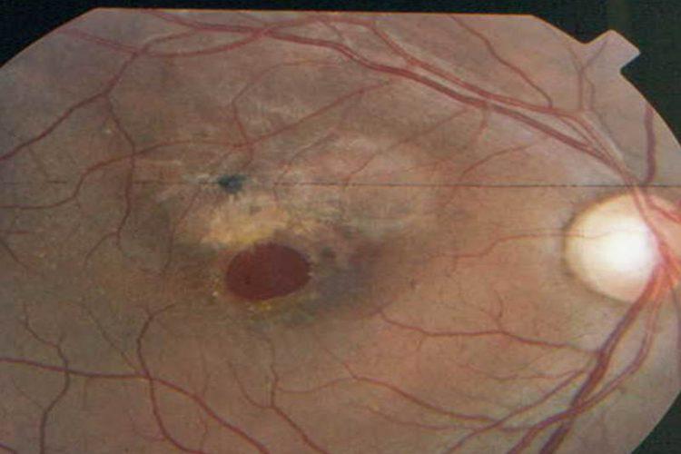 Trauma ocular contuso que produjo un agujero macular – golpe de puño